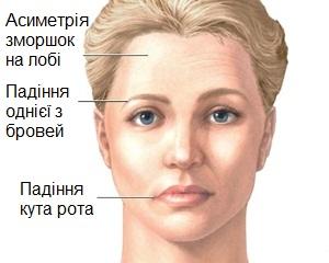 зміна обличчя при інсульті