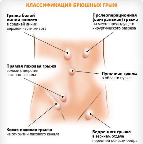 gryzha_zhivota_2_0
