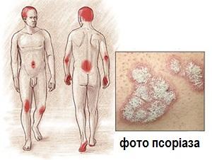 psoriaz1